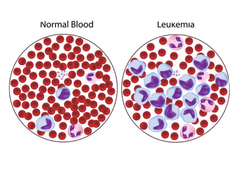 سرطان خونی شدید لنفوسیت