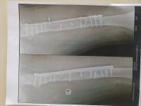 آلبوم تصاویر اعمال جراحی - 1252